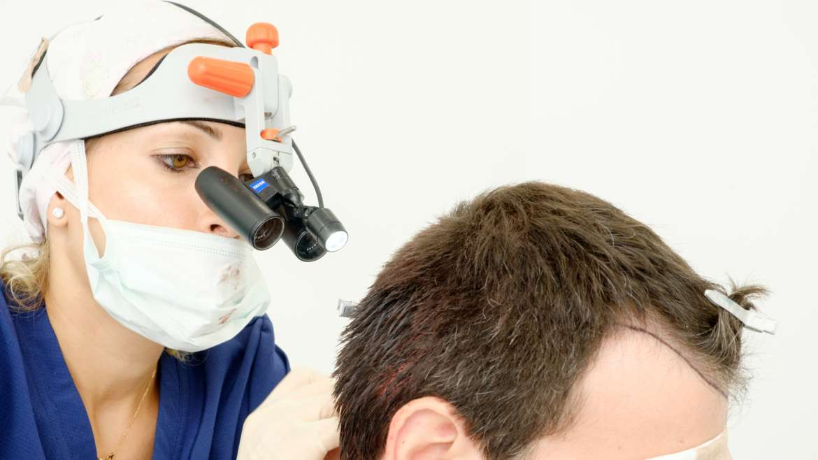 Hair transplantation. Does it really work?