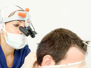 Hair transplantation. Does it really work?