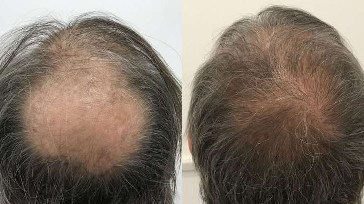 CASE 3: Hair transplantation on the vertex