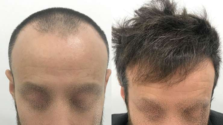 CASE NO 7: FRONTAL HAIR TRANSPLANT