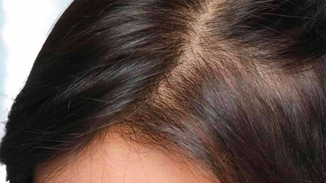Alopecia da stress: come la psiche influenza la caduta dei ...