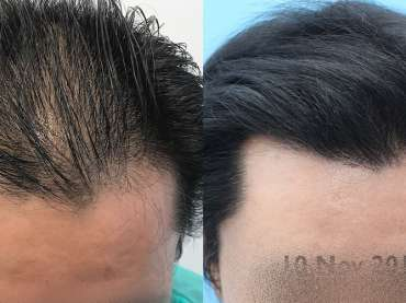 CASE N°12 – Unshaved Ox Hair Transplant at 8 MONTHS from the surgery