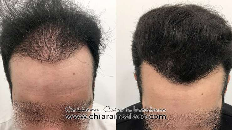 CASE N°14 – FUE shaved hair transplant – 2500 grafts