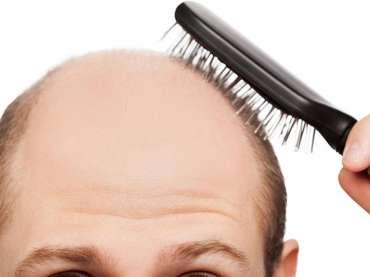 Perché l'alopecia colpisce soprattutto gli uomini e quali rimedi sono utili
