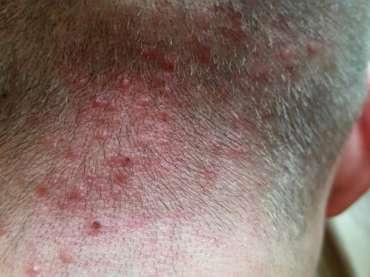 Cos'è la follicolite, come si cura e come influisce sulla salute dei capelli