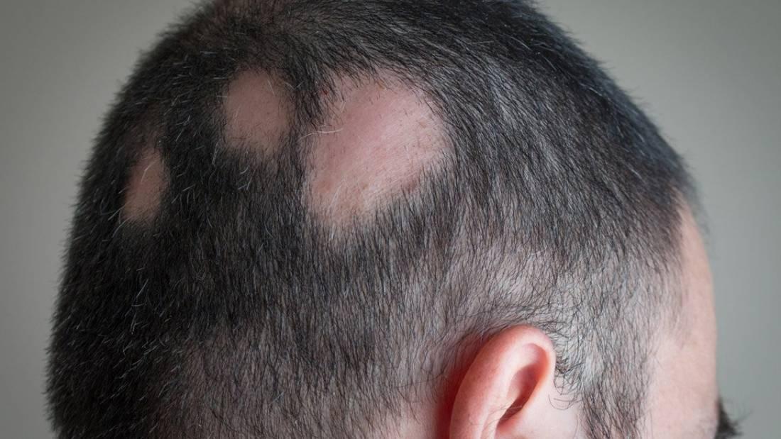 Perdita dei capelli: quando è importante rivolgersi al medico