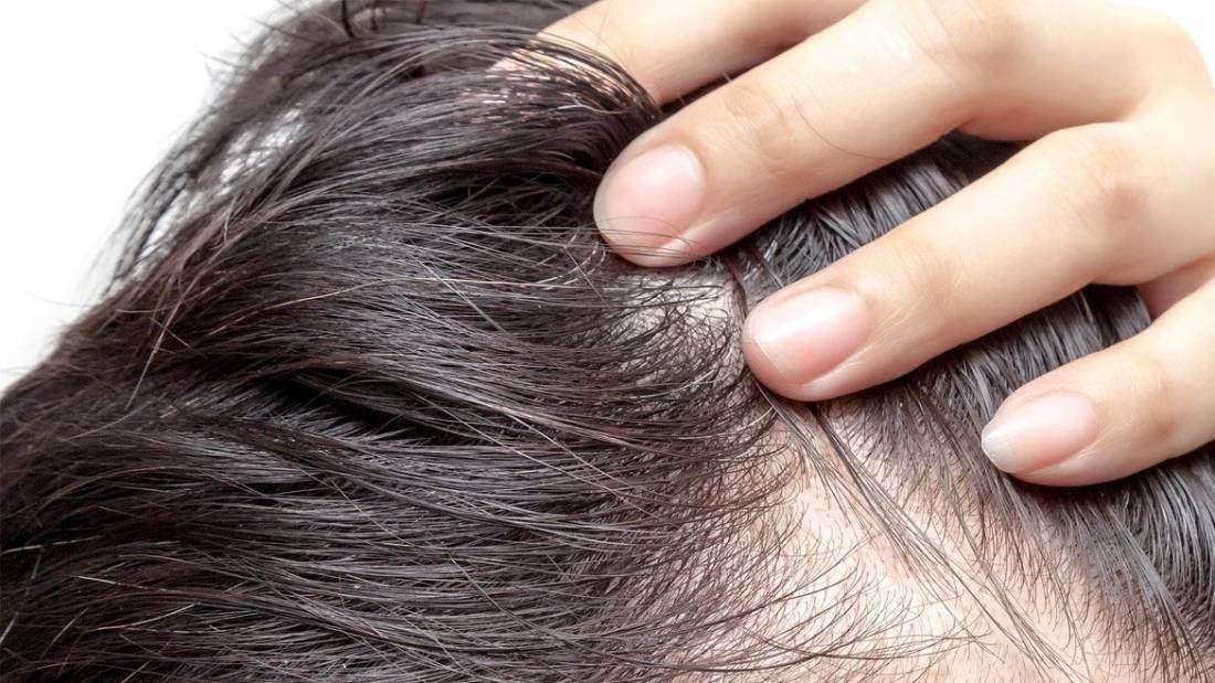 Come si guarisce dall'alopecia da stress e in quanto tempo