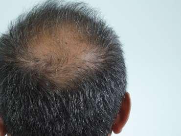 Cosa ci dicono i capelli sulla salute del nostro organismo