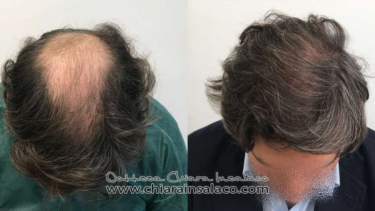 CASE N°16 – TRANSPLANTATION ON CROWN, 1 YEAR AND 2 MONTHS – 2000 GRAFTS
