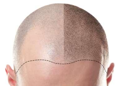 Alopecia e tricopigmentazione: la durata del trattamento