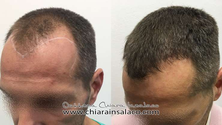 CASE N°17 – HAIR TRANSPLANT, FIRST LINE AND GULFS – 2200UF