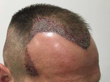 Quando dura l'effetto di un trapianto di capelli? Tutte le domande per capire se fa al caso proprio