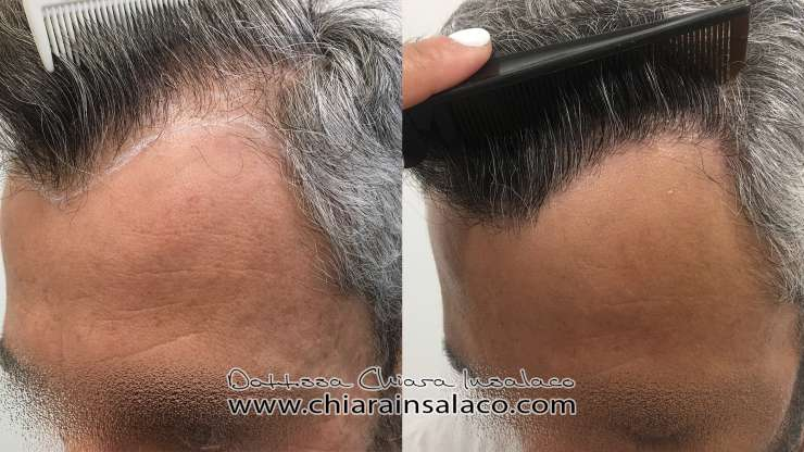 Case No. 18 – Partially shaved Fue HT (shaved donor area, unshaved recipient area)