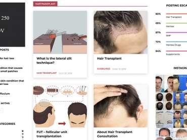 Alliance4hair, il nuovo blog internazionale specializzato nella perdita dei capelli