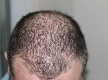 Cause alopecia: individuarle aiuta a salvare i capelli